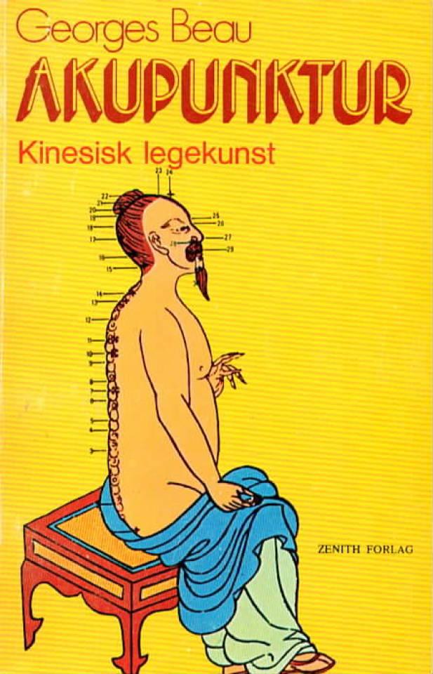 Akupunktur – Kinesisk legekunst